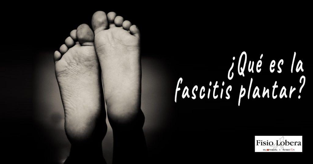¿Qué es la fascitis plantar? Causas y tratamientos